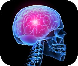 post-traumatic-migraine 4